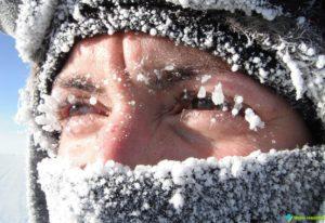 аллергия на холод на глазах