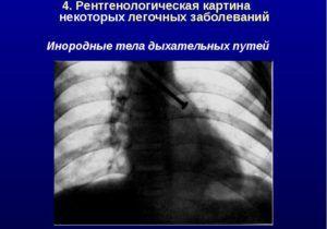 Причины появления инородных тел в просвете бронхов