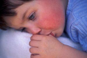 крапивница у ребенка на лице