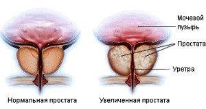 фиброз