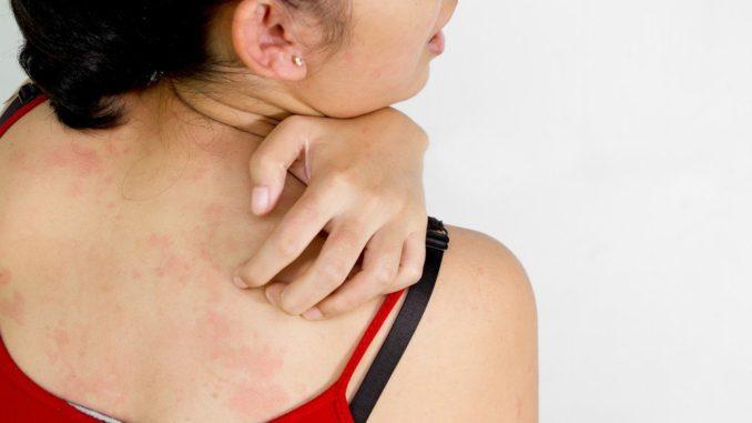 аллергическая сыпь на спине