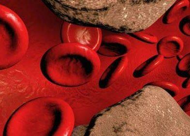 Распространенным атеросклерозом кровеносных сосудов,