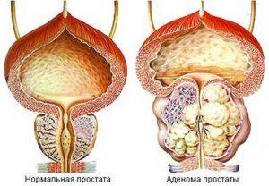 Влияние простатита на зачатие