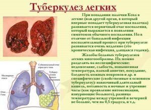 При туберкулезе наблюдается мокрый кашель