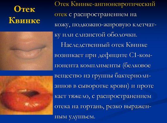 Отек Квинке