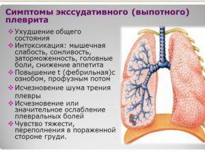 Симптомы экссудативный плеврит
