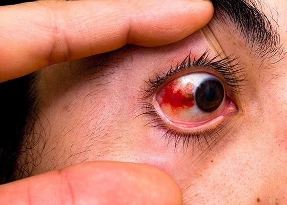 Глазное кровотечение
