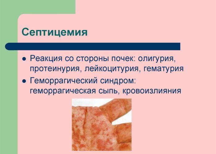 Септицемия