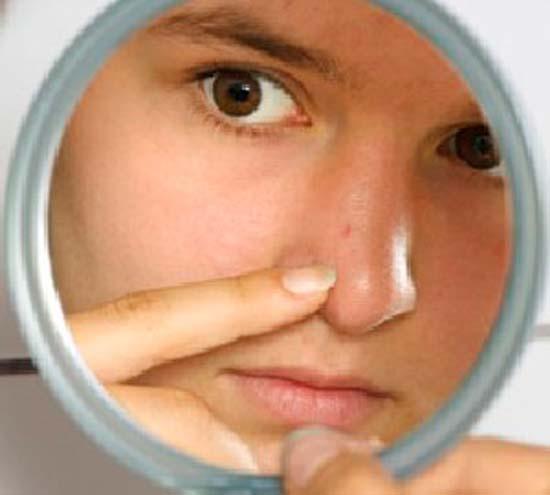Проверенные способы избавления от внутреннего прыща на носу