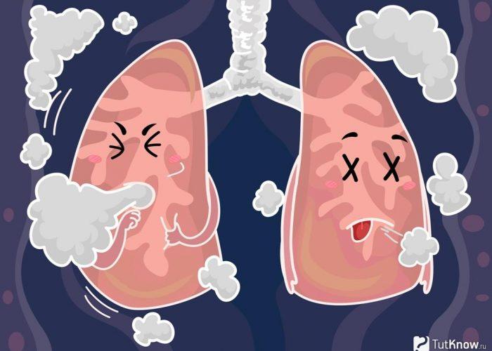 Одышка и поверхностное дыхание