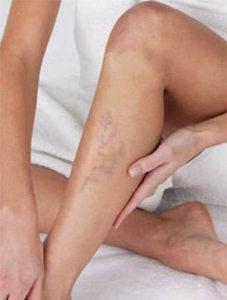 Как принимать «Детралекс» при варикозе