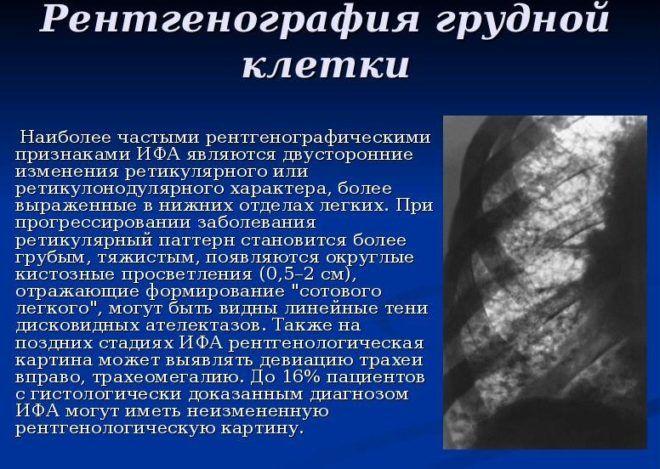 Рентгенография грудины