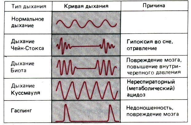 Виды периодического дыхания