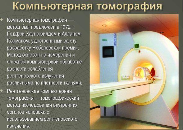 Компьютерная томография для диагностики и место расположения очага