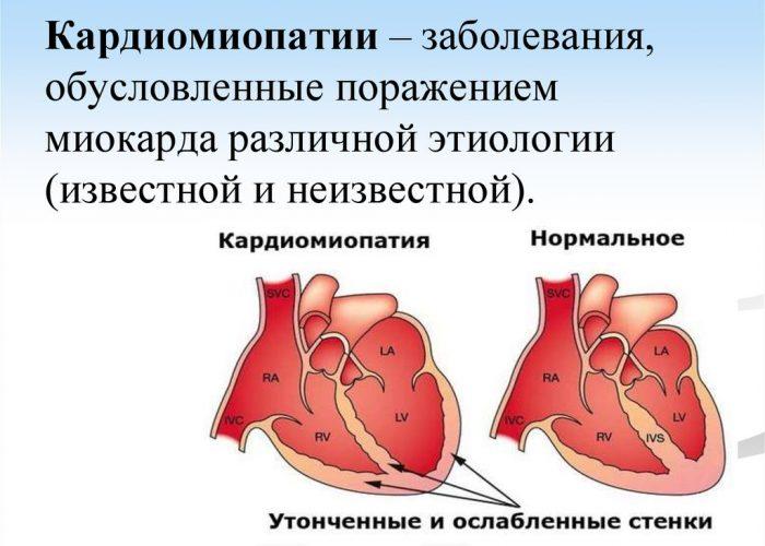 Обструктивная кардиомиопатия