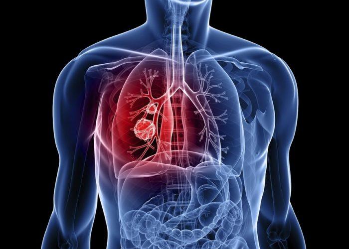 Наследственные заболевания легких