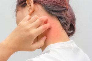 аллергия на шее у девушки