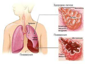Легкие во время пневмонии