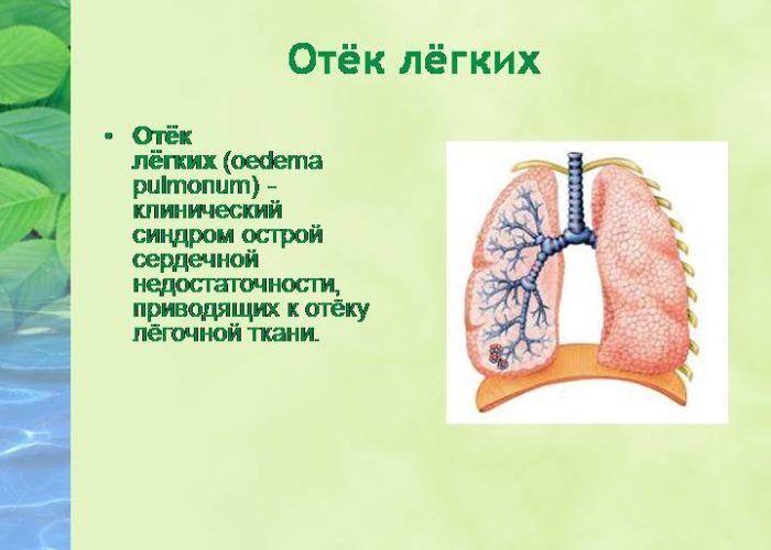 Критерии диагностики стадий пневмонии в зависимости от степени тяжести