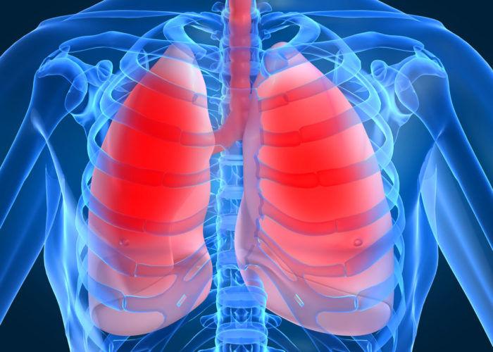 Новообразования в органах дыхания