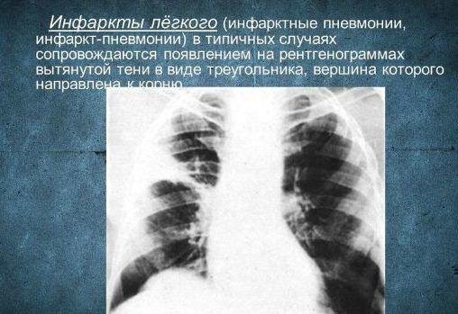 Инфаркт-пневмония