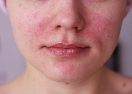 Покраснение кожных покровов на лице
