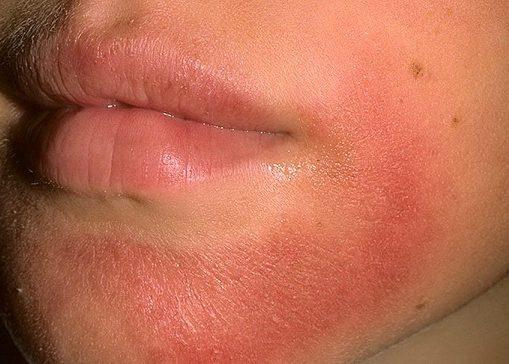Острый дерматоз в тяжелой форме