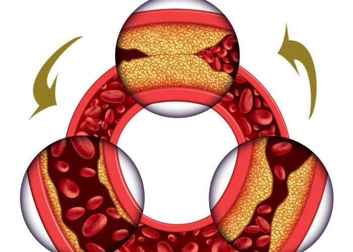 Улучшение коронарного кровообращения