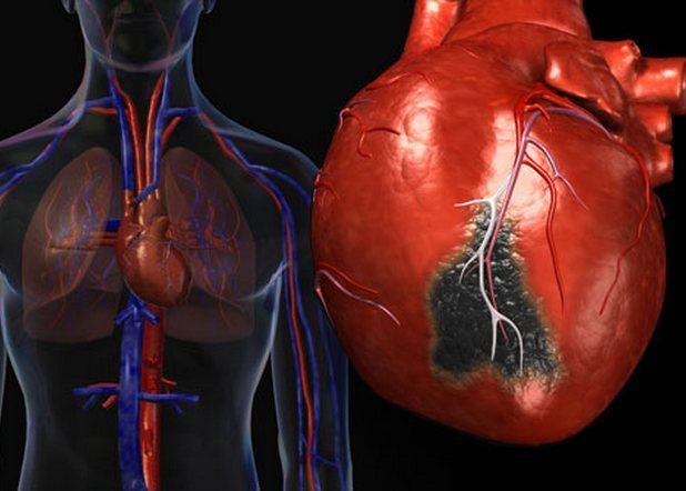 Перенесённый инфаркт миокарда или инсульт