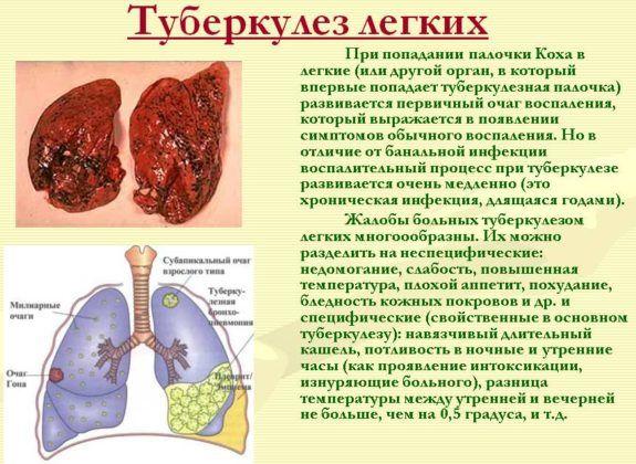 Множественные уплотнения являются признаком туберкулеза легких