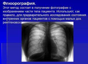 Флюорография для диагностики