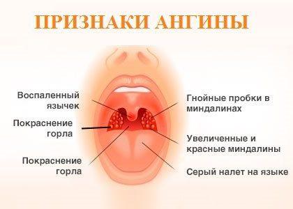 Устранение ангины и сухого кашля