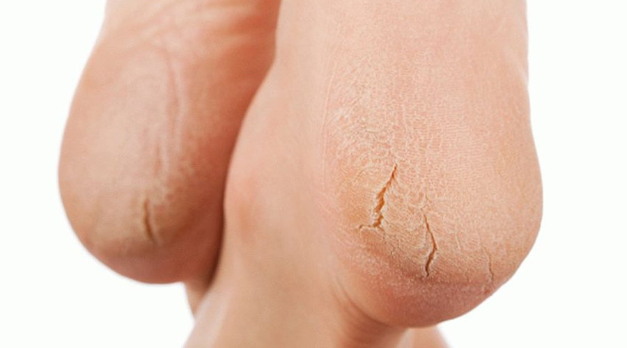 Чем лечить трещины на пятках у женщин