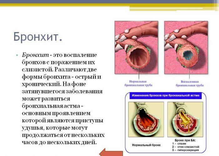 Применение препарата Бронхолитин