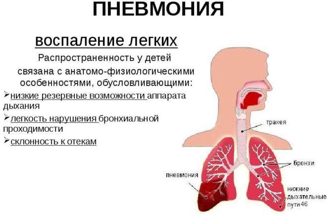 При пневмонии мокрота становится желтого цвета