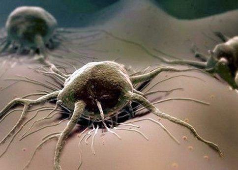 Распространение онкологического процесса по всему телу