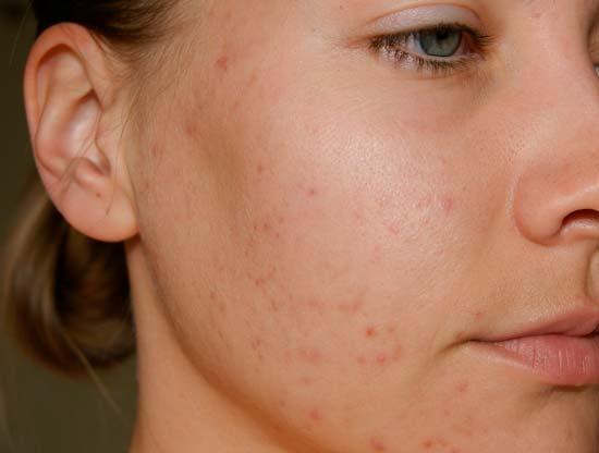 Как вылечить кожные высыпания на лице с помощью трихопола