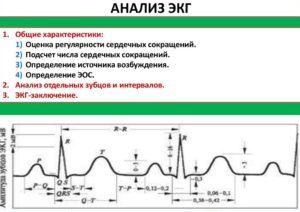 ЭКГ для диагностики сердечного кашля