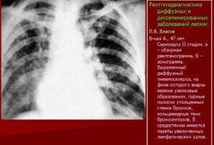 Диффузный пневмофиброз